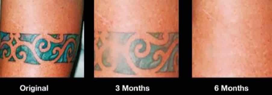 the best tattoo removal options and alternatives