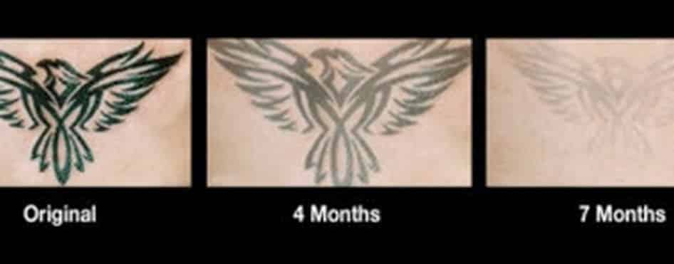 The best tattoo removal options and alternatives for Does tattoo removal cream work
